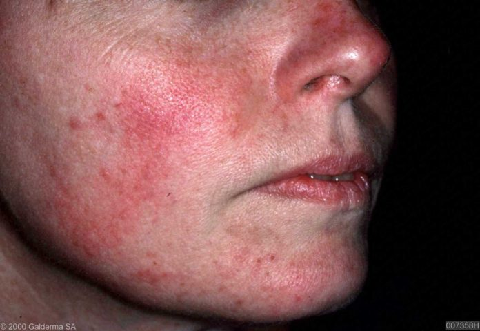 acne rosacea home remedy