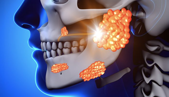 Home remedies for salivary gland infections