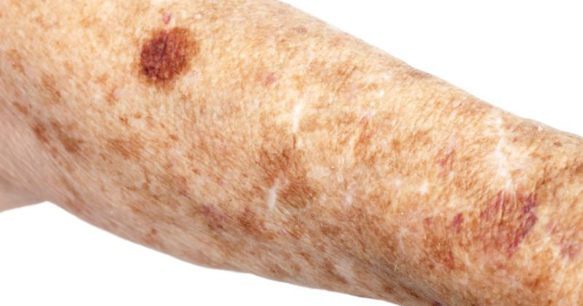 Natural Remedies For Skin Spots