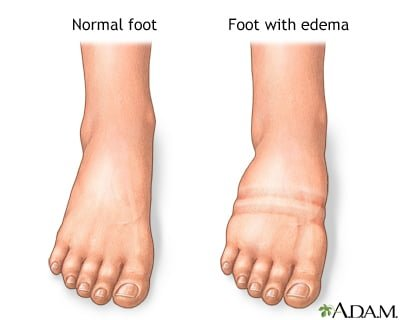 Natural cures for edema, edema home remedy
