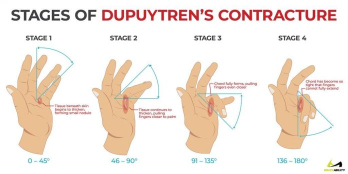 dupuytrens contracture foot