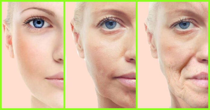 Natural Treatments For Skin Tightening