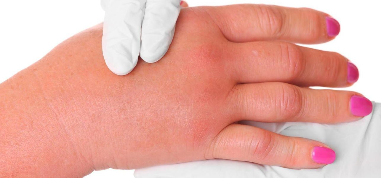 edema - symptoms, causes and other associated risk factors, Skeleton