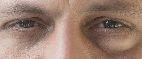 Natural cures for swollen eyes, swollen eyes home remedy
