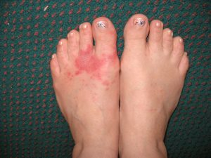 Symptoms of fire ant bites