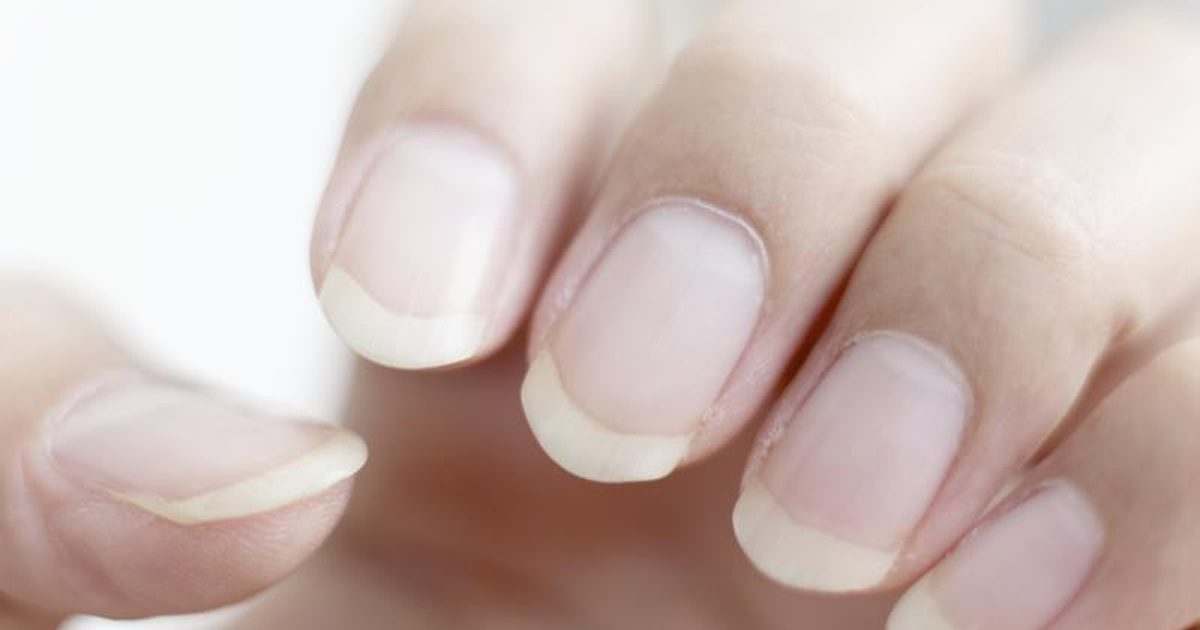 Use coconut oil and lemon juice as your weak nails home remedy