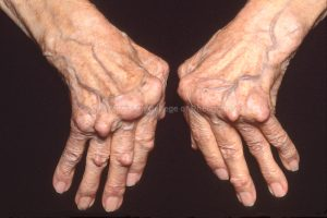 Osteoarthritis symptoms causes