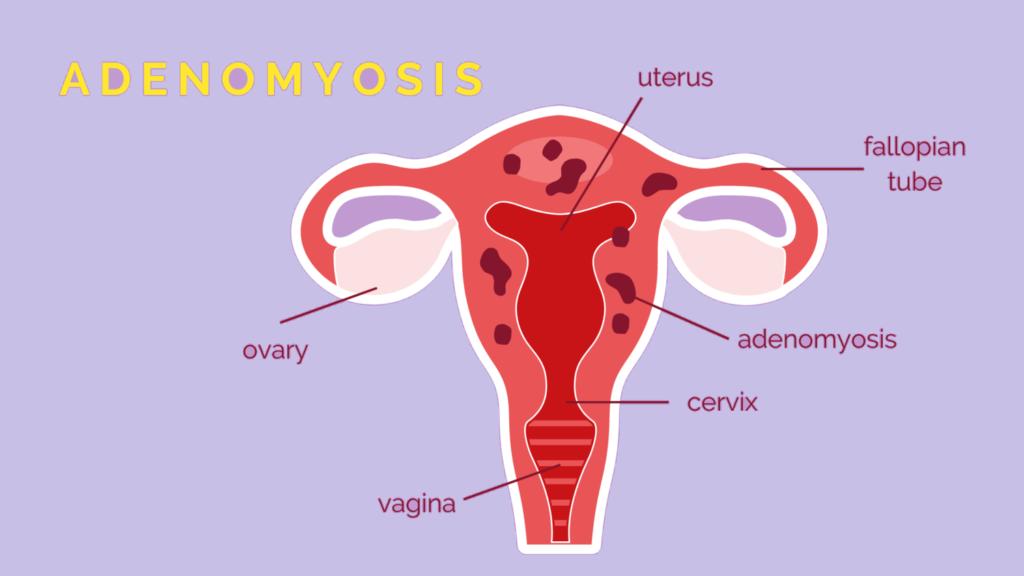 Adenomyosis pregnancy