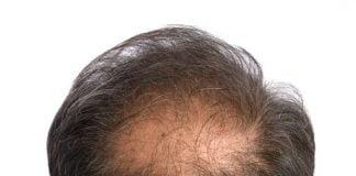 Alopecia in men
