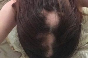 Alopecia in women
