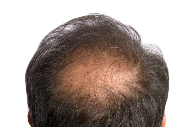 Alopecia in men