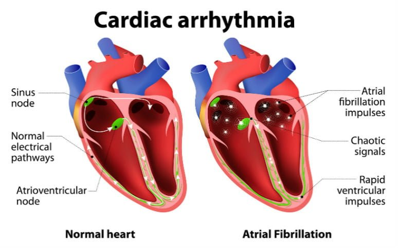 Arrhythmia Treatment Natural