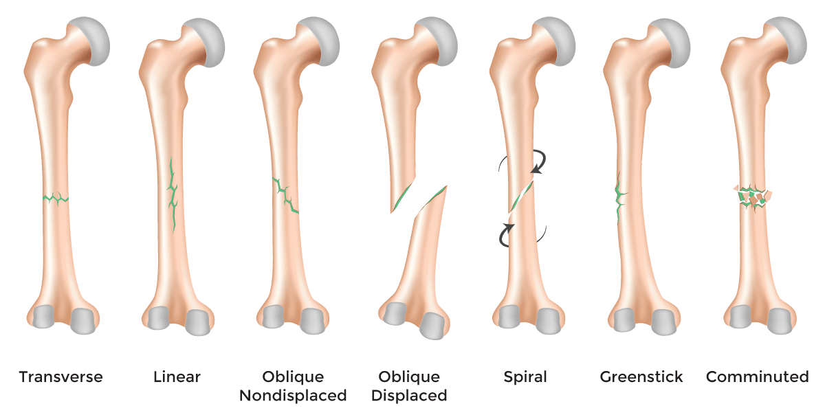 Fractures – Symptoms, causes and other risk factors