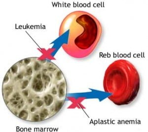 Bone marrow Home Remedy