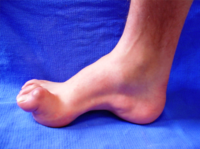 Charcot Marie Tooth Disease Symptoms