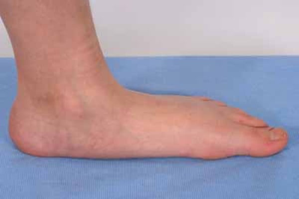 Charcot Marie Tooth Disease: Symptoms And Causes