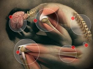 chronic pain syndrome natural treatments