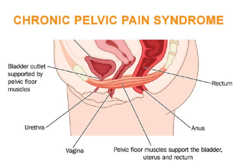 Chronic pelvic pain in men home treatment