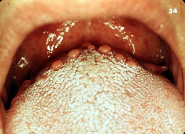 Post nasal drip symptoms and causes