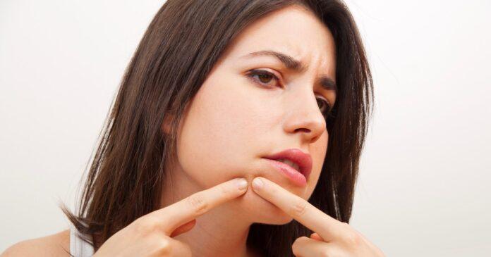 natural Treatments for dermatillomania