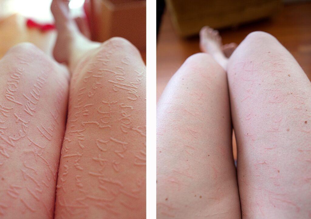 Dermatographic Urticaria Causes
