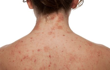 Dermatitis: Symptoms, Causes,Risk factors and Complications