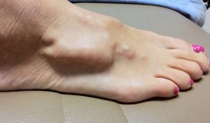 ganglion cysts causes