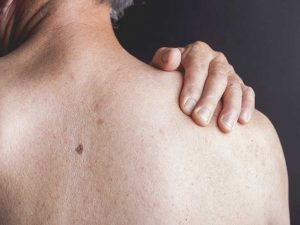 Grover's disease symptoms, causes and complications