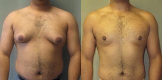 Natural cures for gynecomastia