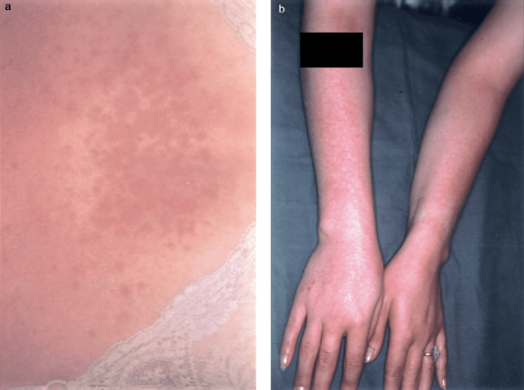 Home remedies for polymorphous light eruption