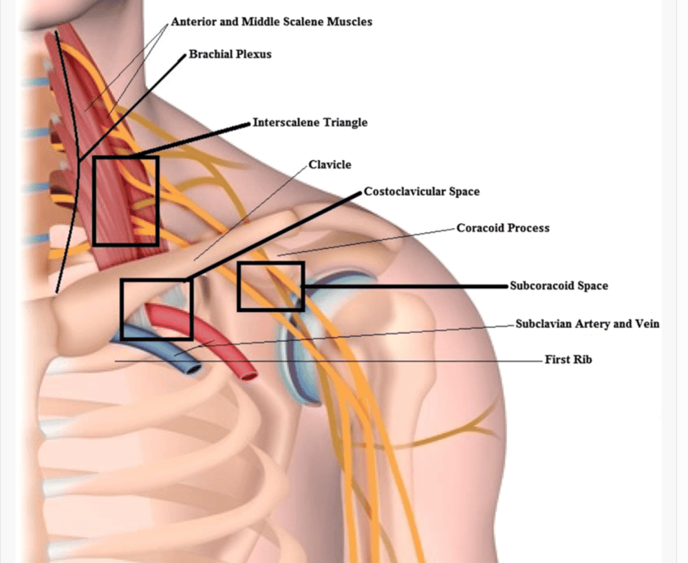 Home remedies for thoracic outlet syndrome