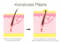 Keratosis Pilaris symptoms causes
