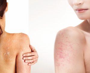 Dry skin have increased chances of developing keratosis pilaris