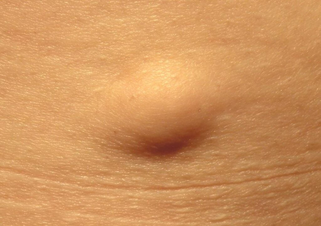 Lipoma - Symptoms, Causes, Risk factors & Types