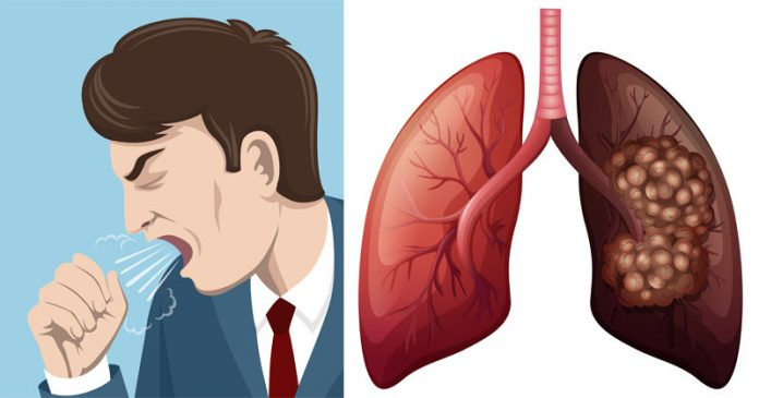 causes and symptoms of lung cancer