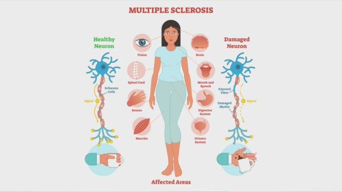 Multiple sclerosi