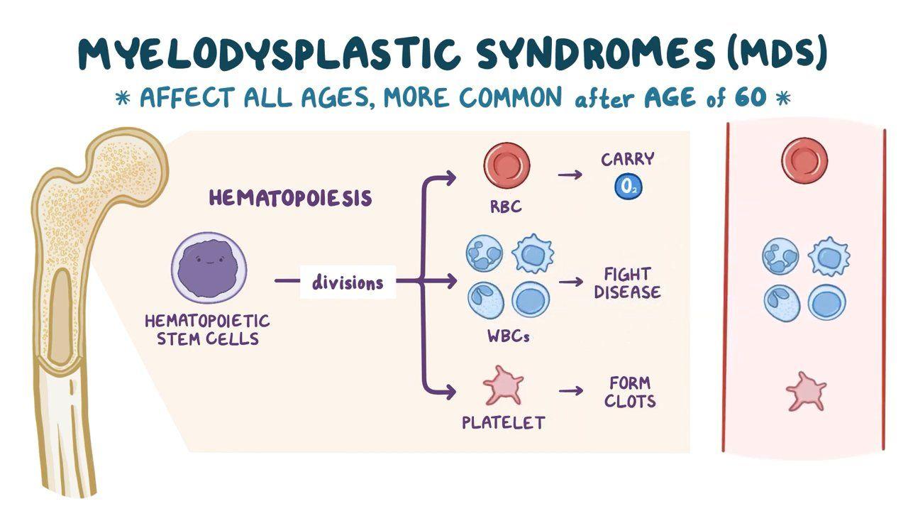 Myelodysplastic syndrome - Symptoms, causes, types, top 4 ...