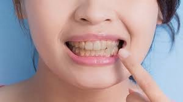 Natural Treatments for Teeth Stains