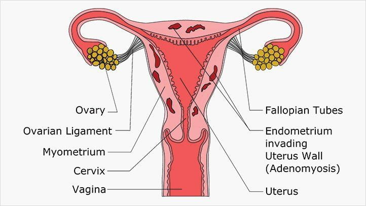 Natural cures for adenomyosis