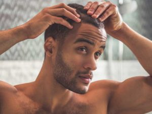Natural cures for alopecia in men