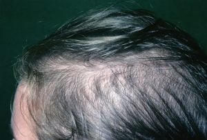 Natural cures for alopecia in women