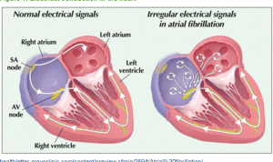 Atrial fibrillation treatment through home remedies and natural cures