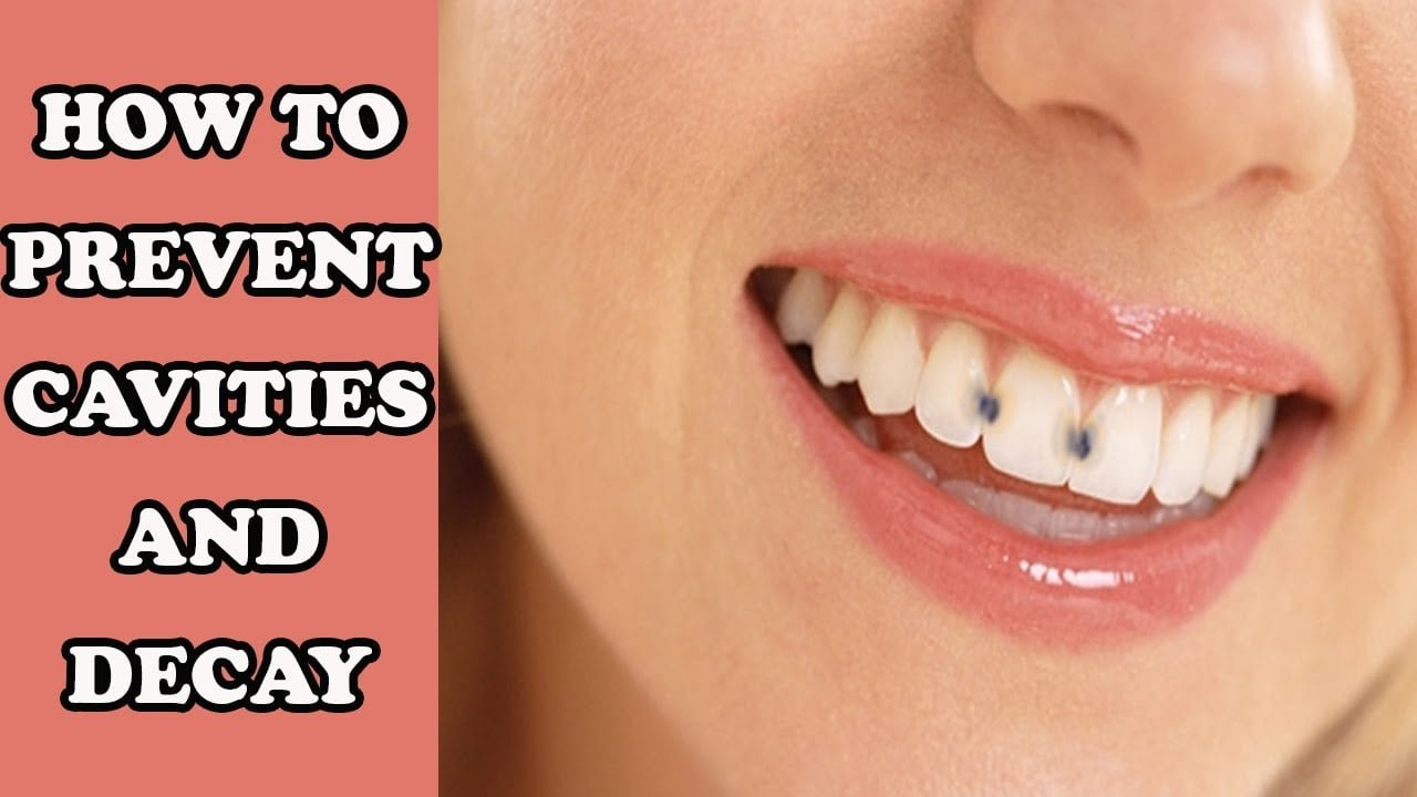 Can You Cure Cavities Naturally
