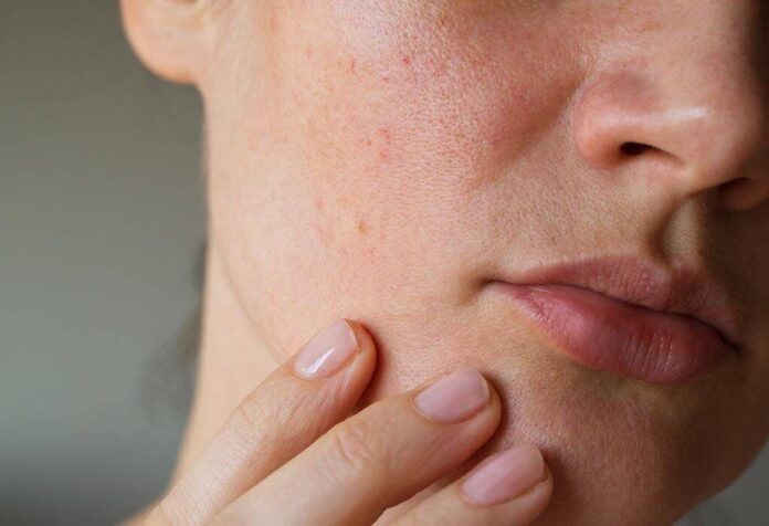 Natural cures for clogged pores