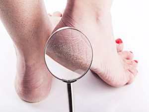 Natural cures for cracked heels