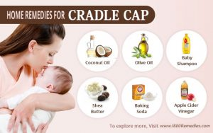 Effective natural cures and home remedies for cradle cap