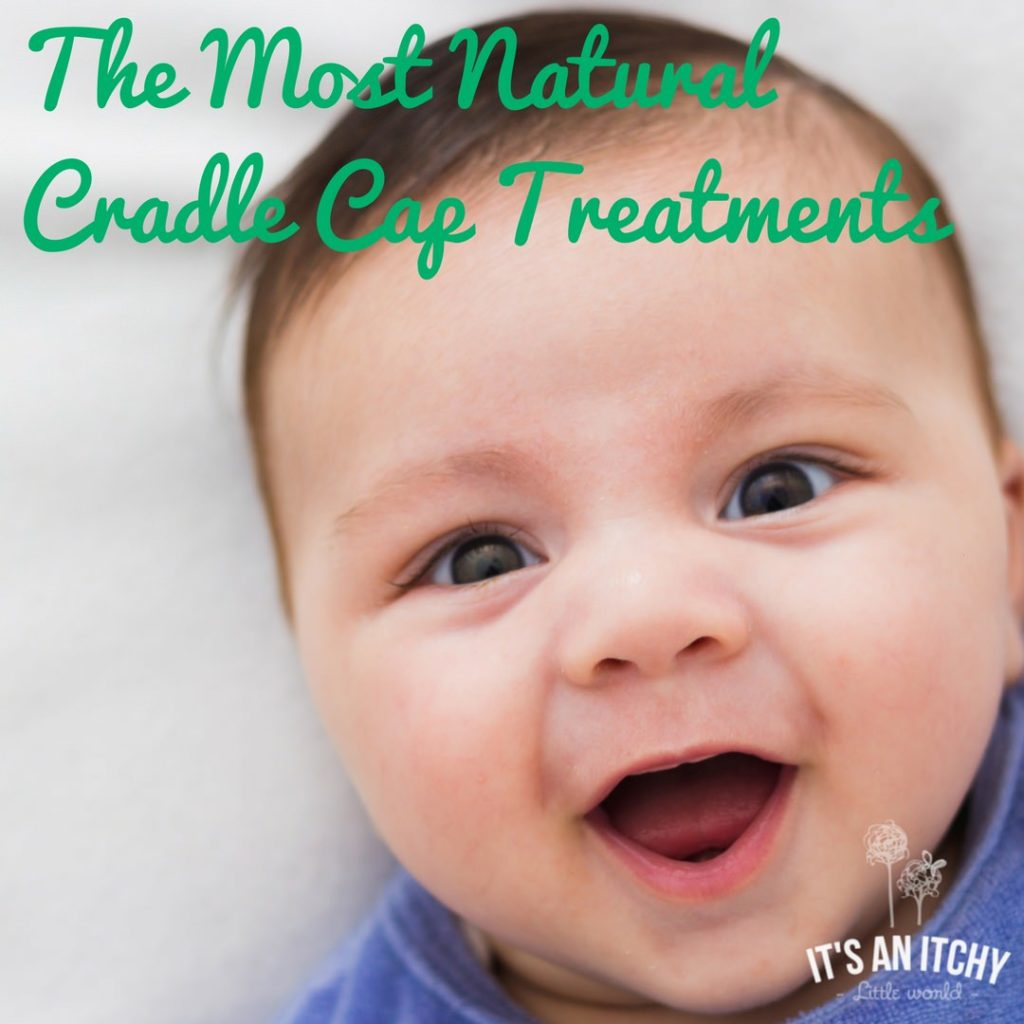 how to get rid of cradle cap naturally