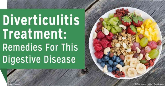 Natural treatments for diverticulitis