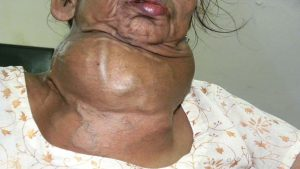 Natural cures for goiter