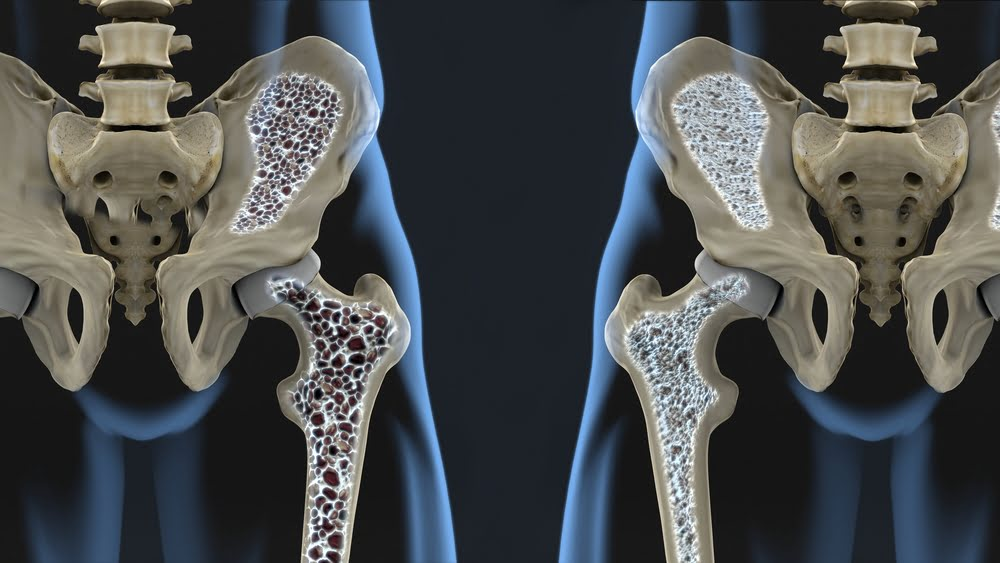 Natural cures for osteopenia